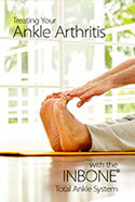 Treating Your Ankle Arthritis