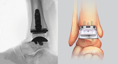 Why Choose Ankle Replacement Over Getting Your Ankle Fused