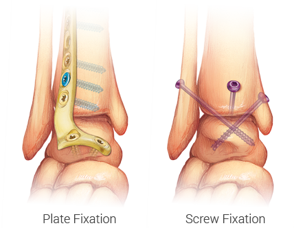 Ankle Fusion options - Plate and screw fixation